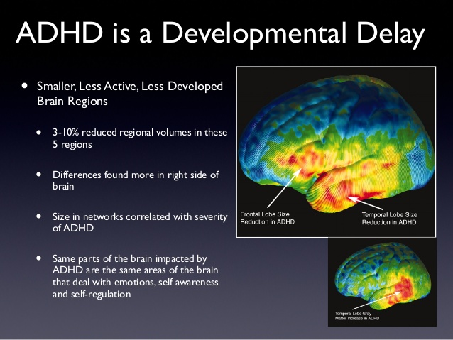 Adhd And Brain Structure  The Disorder Affects Teens