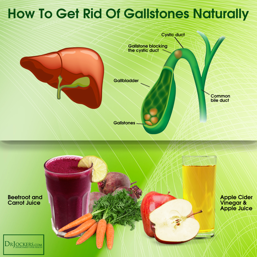 Beat Gallstones Naturally