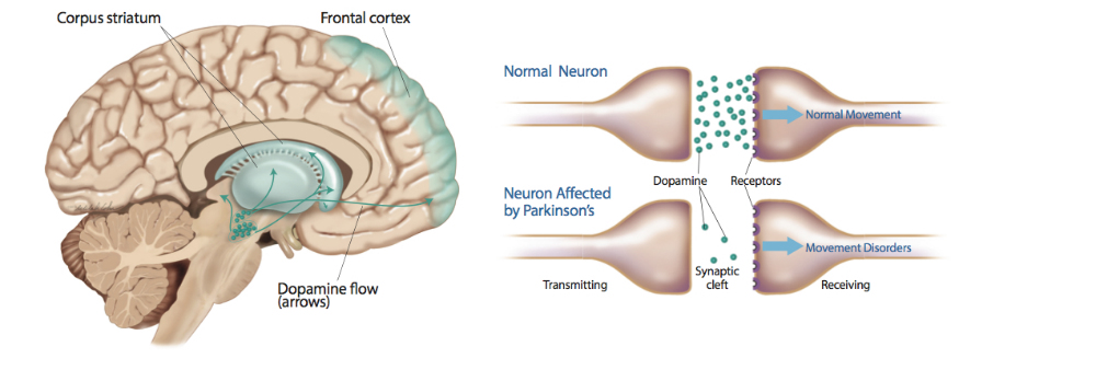 parkinsons disease and tourettes syndrome essay Tics can be associated with behavioral disorders such as attention deficit  hyperactivity disorder (adhd) and  however, some patients continue to have  symptoms throughout their lives  parkinson's disease and movement  disorders center  care and management for patients with tic disorders and  tourette syndrome.