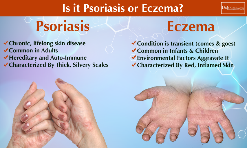 Again, it can be diagnosed as eczema, psoriasis and even dermatitis by some practitioners 3