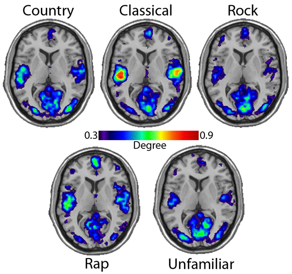 music genres the effects on a Emotional-wellness~american academy of pediatrics (aap) discusses music's beneficial effects on mental health  music and mood music's.