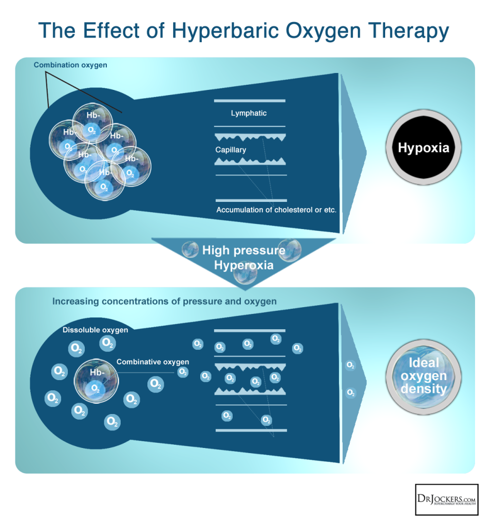 HyperBaric_Effects