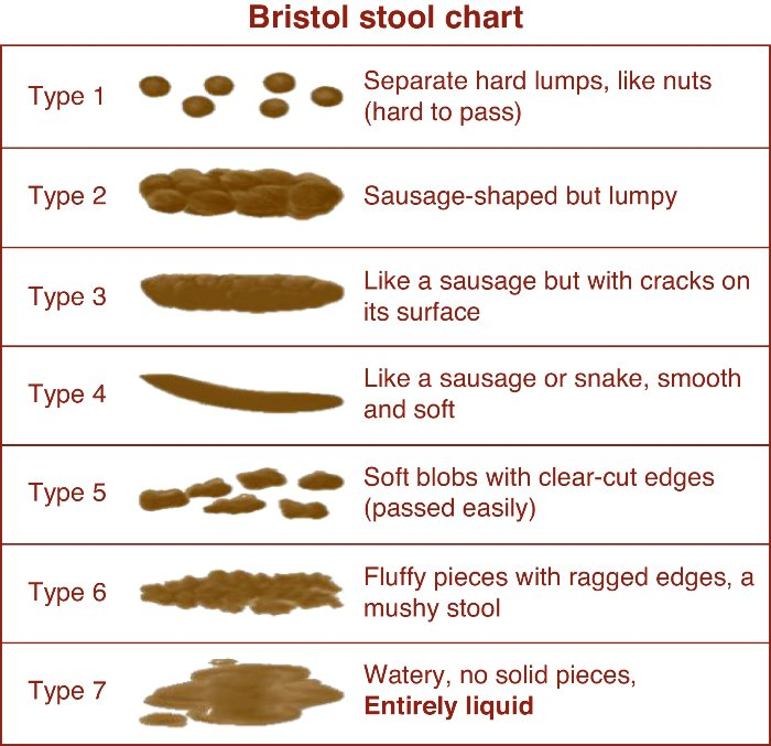 Bristol-stool-chart  sc 1 st  Parental Alienationu0027s Dirty Secrets  Akin to Domestic Violence 40 ... & 16 Ways to Achieve Healthy Poop by Dr Jockers u2013 Parental ... islam-shia.org