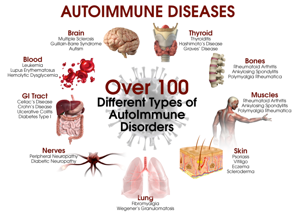 5 steps to heal autoimmune disease - drjockers, Skeleton