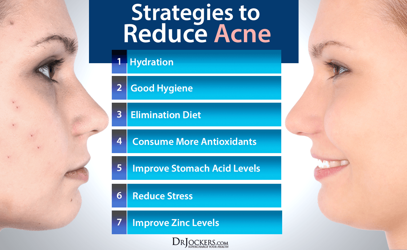 acne_improvesummary