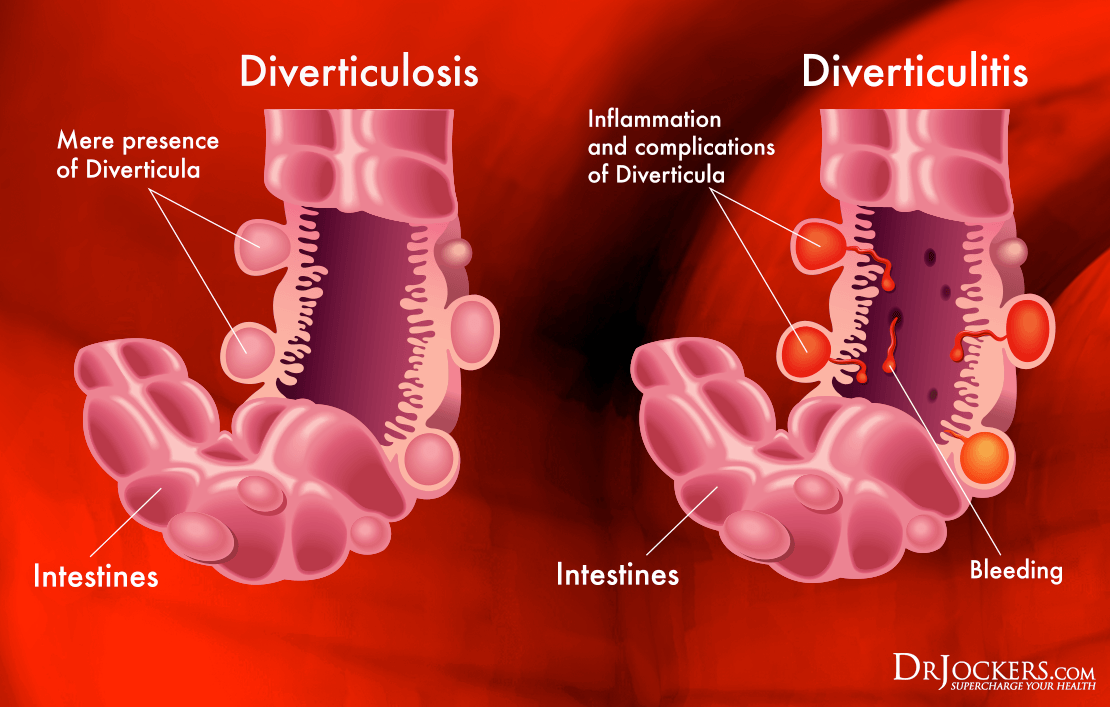 will diverticulitis heal without antibiotics